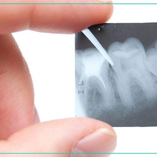 TwinLight® Endodonciális kezelés