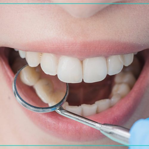 Konzerváló fogászat
