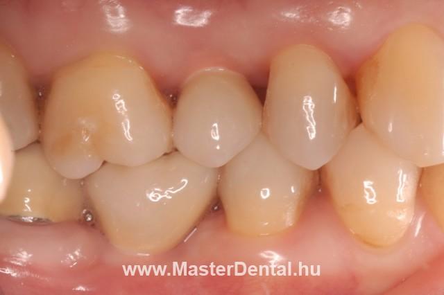 Az elkészült cirkónium koronák a szájban