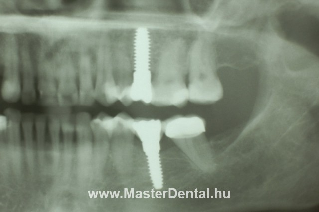 A foghiányok helyére beültetett cirkónium implantátumok röntgenképe