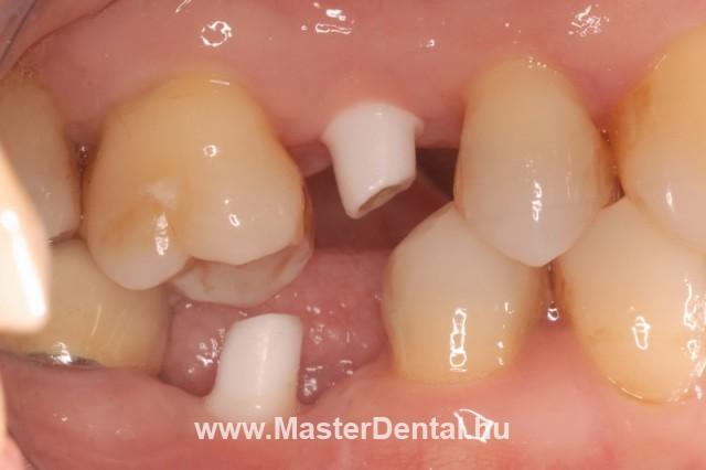 A cirkónium implantátumok csonkjai a szájban