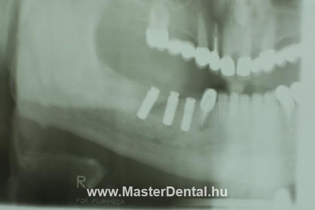 Straumann Bonelevel implantátumok az alsó állcsontban röntgen kép
